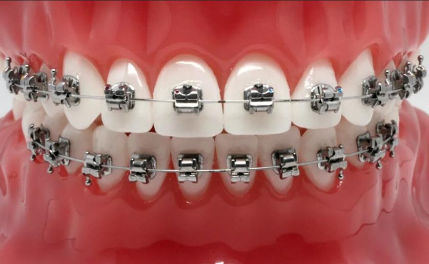 Современные саморегулирующие брекеты в стоматологии
