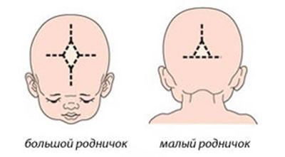 Большой родничок у ребенка: норма, патология, причины больших размеров